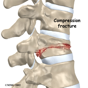 Thoracic_compression_fx_anatomy02