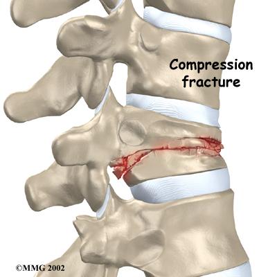 Thoracic_compression_fx_anatomy02